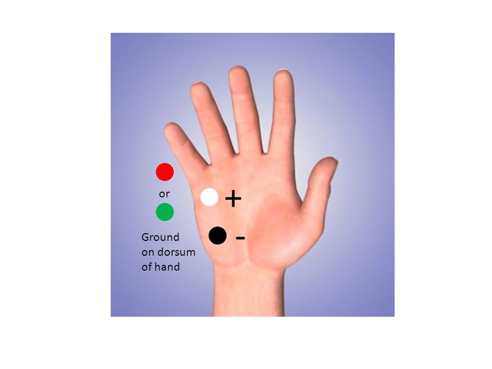 - + Ground on dorsum of hand or