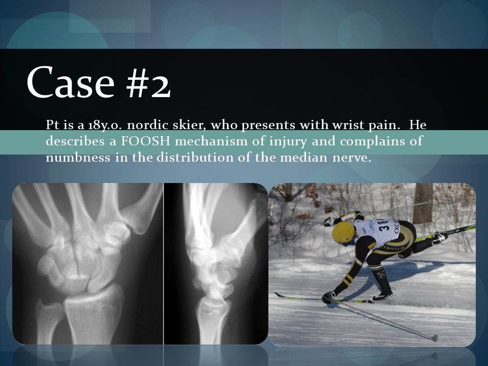 Case #2 Pt is a 18y.o. nordic skier, who presents with wrist pain. He describes a FOOSH mechanism of injury and complains of numbness in the distribut