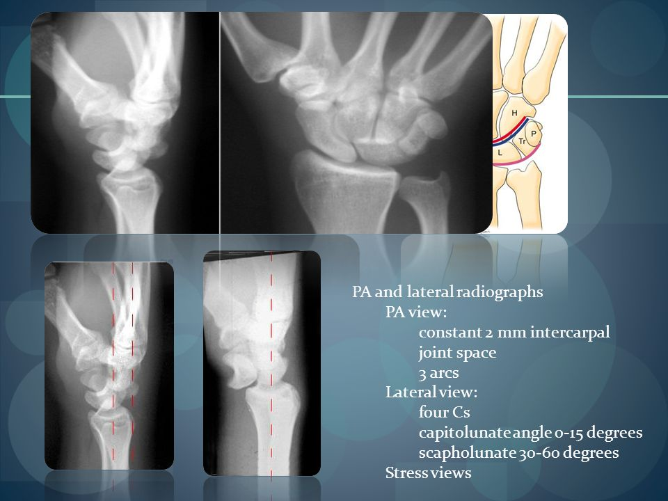 PA and lateral radiographs PA view: constant 2 mm intercarpal joint space 3 arcs Lateral view: four Cs capitolunate angle 0-15 degrees scapholunate 30