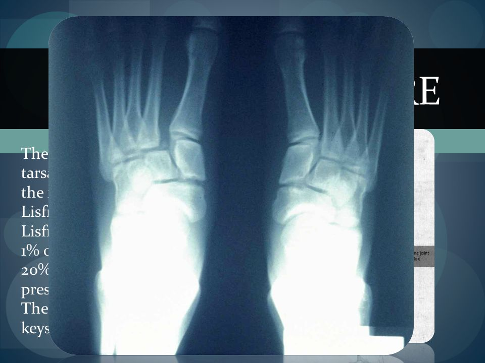 LISFRANC FRACTURE The articulation between the tarsal and metatarsal bones in the foot is named after Jaques Lisfranc. Lisfranc injuries may represent
