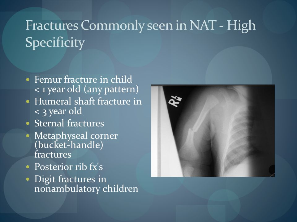 Fractures Commonly seen in NAT - High Specificity Femur fracture in child < 1 year old (any pattern) Humeral shaft fracture in < 3 year old Sternal fr