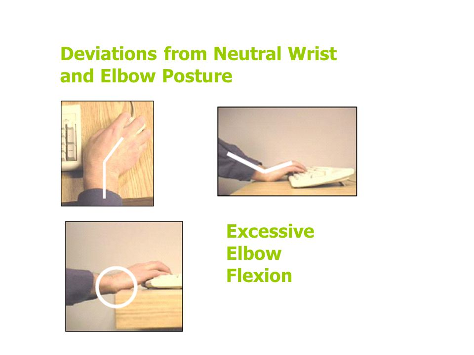 Excessive Elbow Flexion