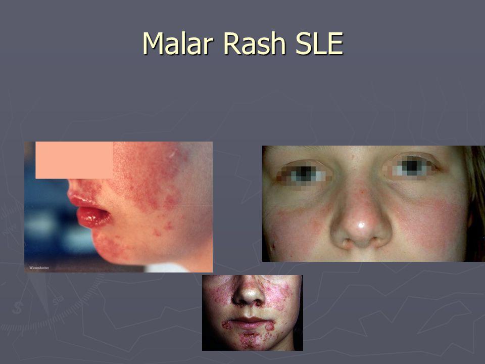 Malar Rash SLE
