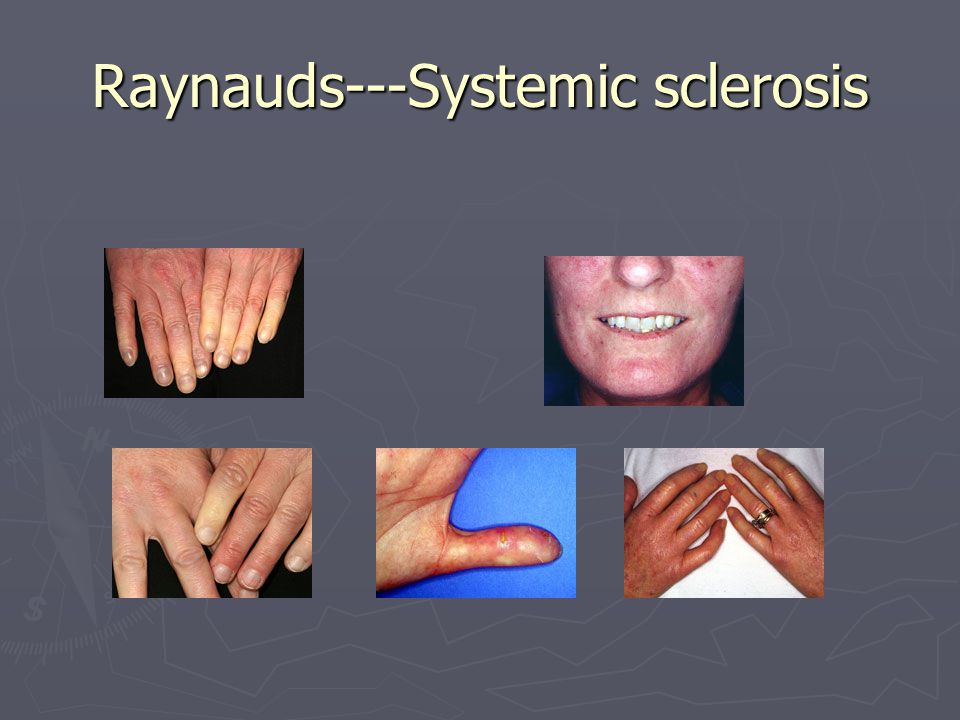 Raynauds---Systemic sclerosis