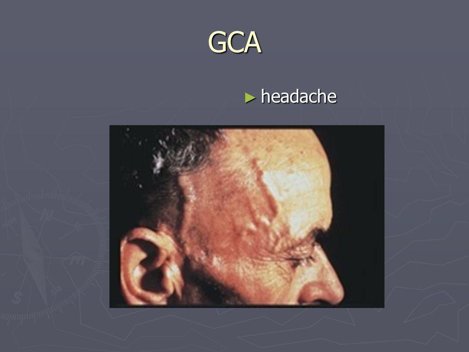 GCA ► headache