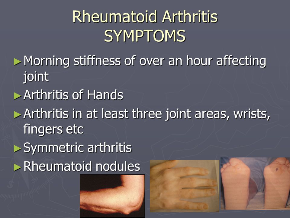 Rheumatoid Arthritis SYMPTOMS ► Morning stiffness of over an hour affecting joint ► Arthritis of Hands ► Arthritis in at least three joint areas, wrists, fingers etc ► Symmetric arthritis ► Rheumatoid nodules