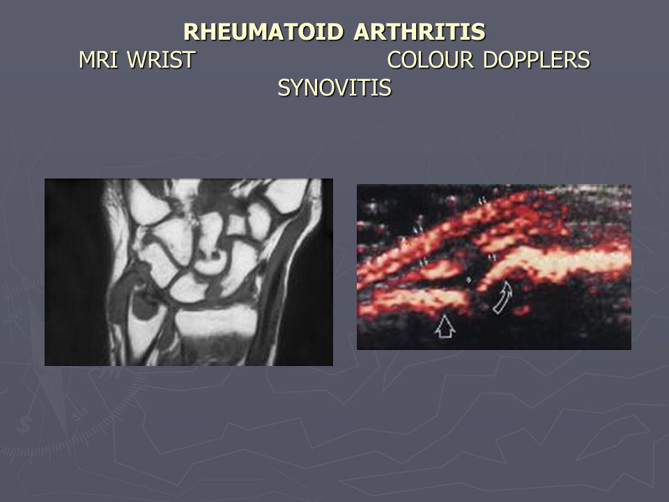 RHEUMATOID ARTHRITIS MRI WRIST COLOUR DOPPLERS SYNOVITIS