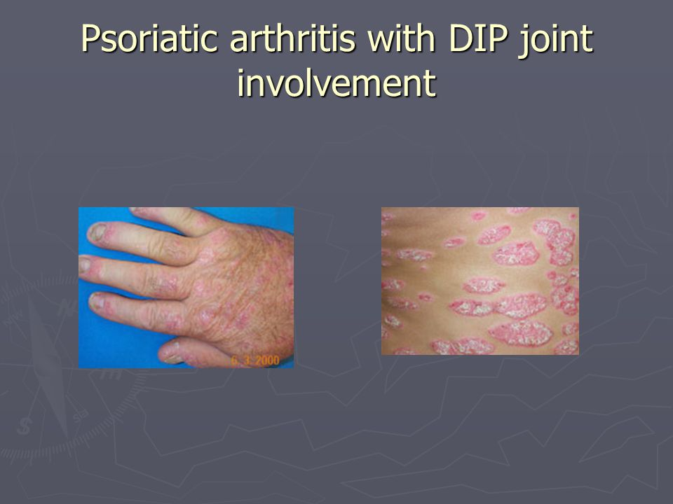 Psoriatic arthritis with DIP joint involvement