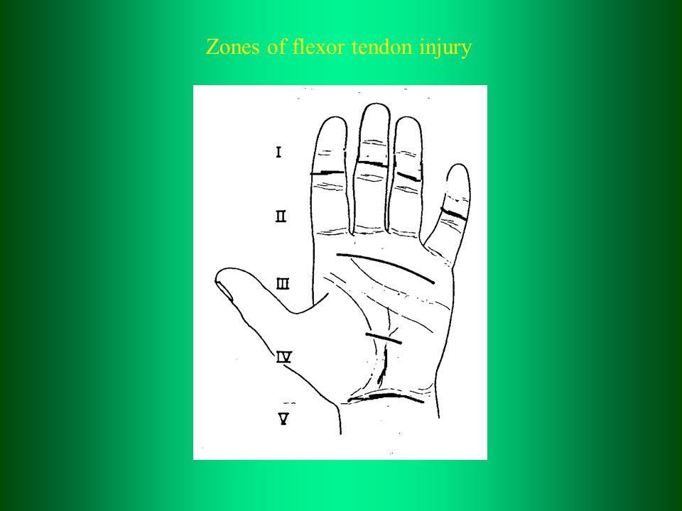 Zones of flexor tendon injury