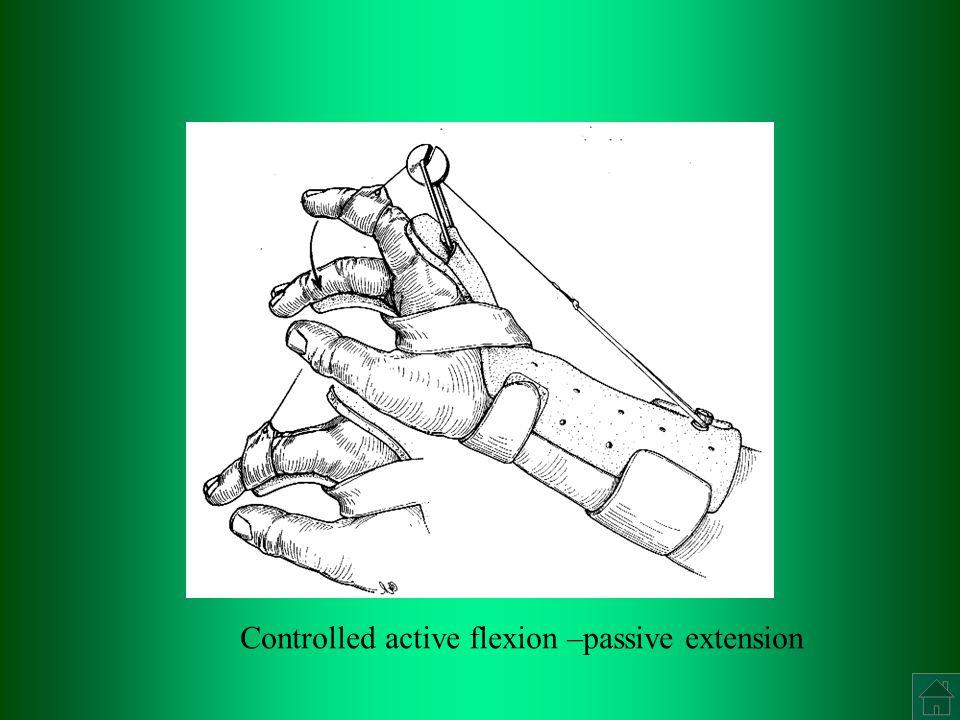 Controlled active flexion –passive extension
