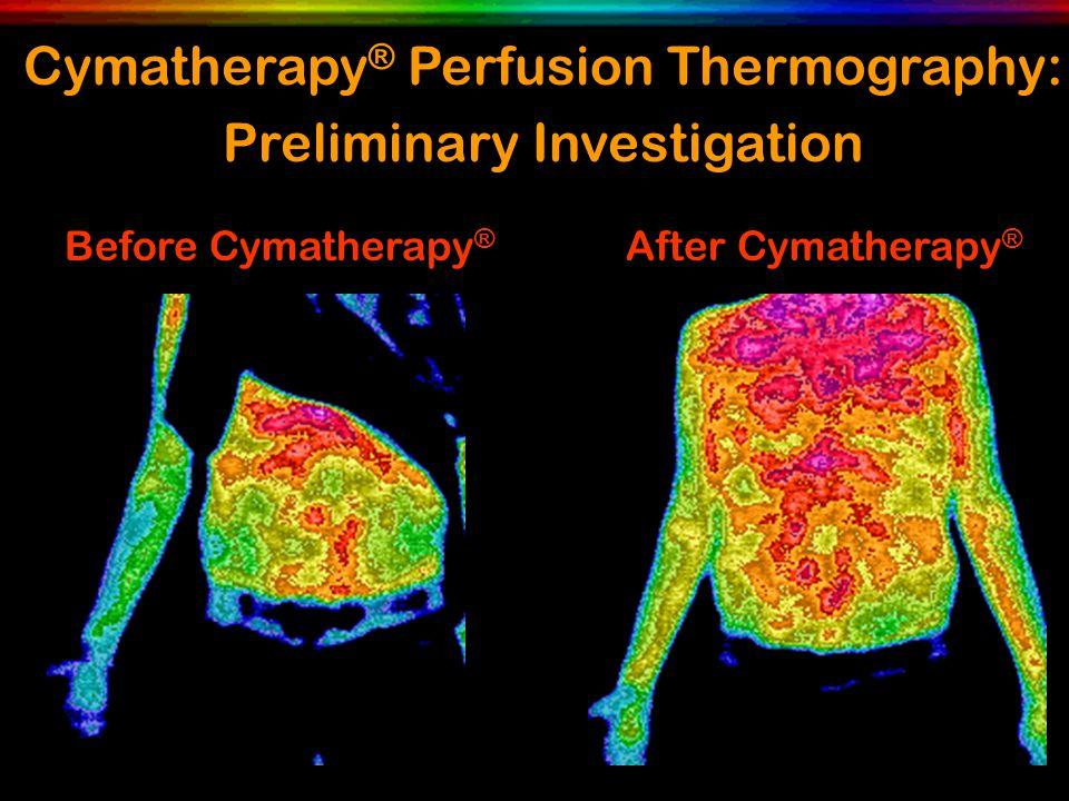 Before Cymatherapy ® After Cymatherapy ® Cymatherapy ® Perfusion Thermography: Preliminary Investigation