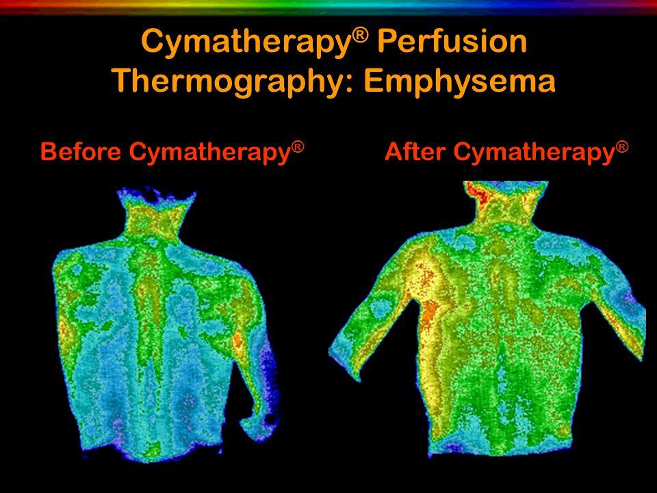 Cymatherapy ® Perfusion Thermography: Emphysema Before Cymatherapy ® After Cymatherapy ®
