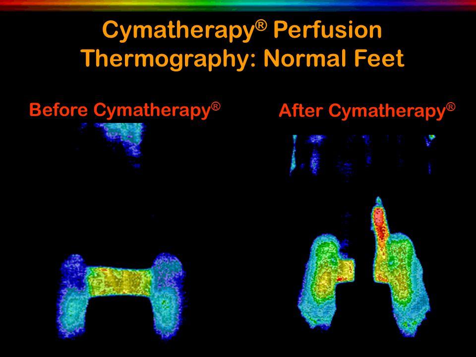 Before Cymatherapy ® After Cymatherapy ® Cymatherapy ® Perfusion Thermography: Normal Feet