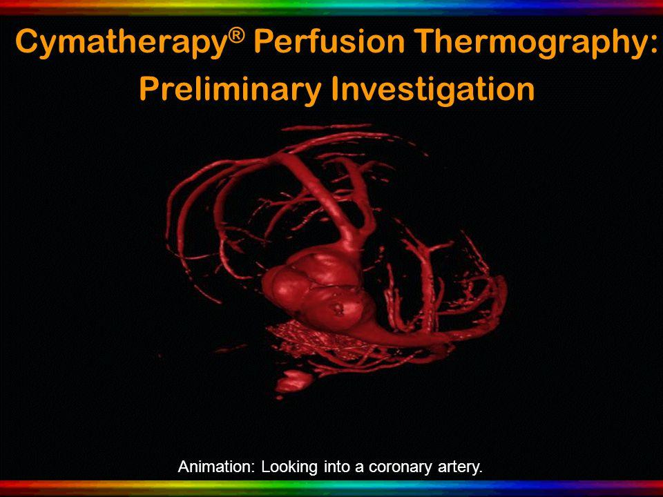Animation: Looking into a coronary artery.