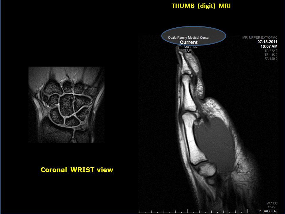 THUMB (digit) MRI Coronal WRIST view