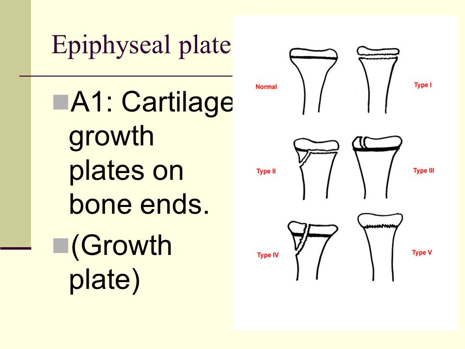 Epiphyseal plate A1: Cartilage growth plates on bone ends. (Growth plate)