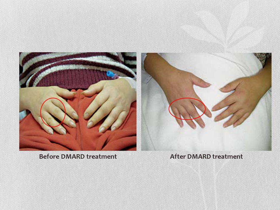 Before DMARD treatmentAfter DMARD treatment