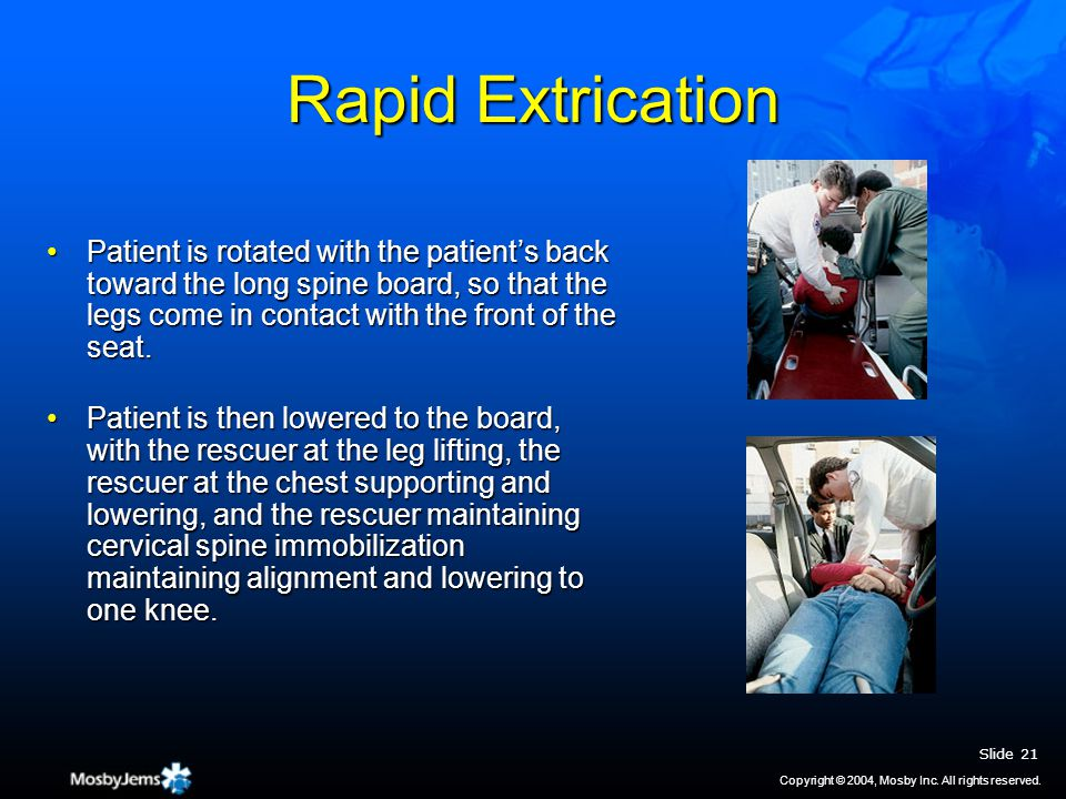 Rapid Extrication Patient is rotated with the patient's back toward the long spine board, so that the legs come in contact with the front of the seat.Patient is rotated with the patient's back toward the long spine board, so that the legs come in contact with the front of the seat.