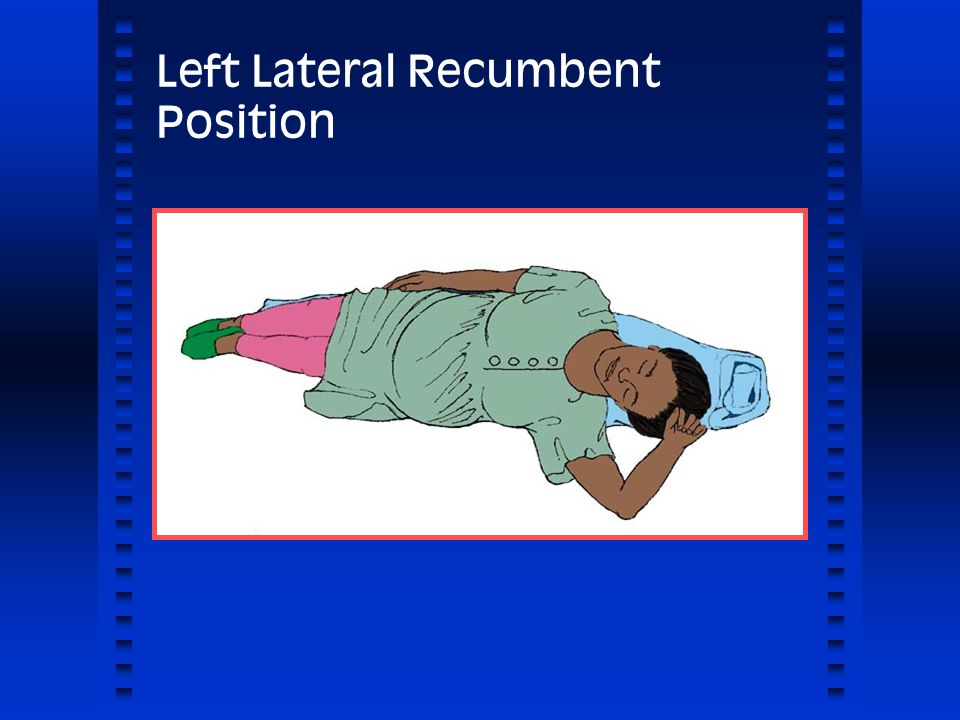 Left Lateral Recumbent Position