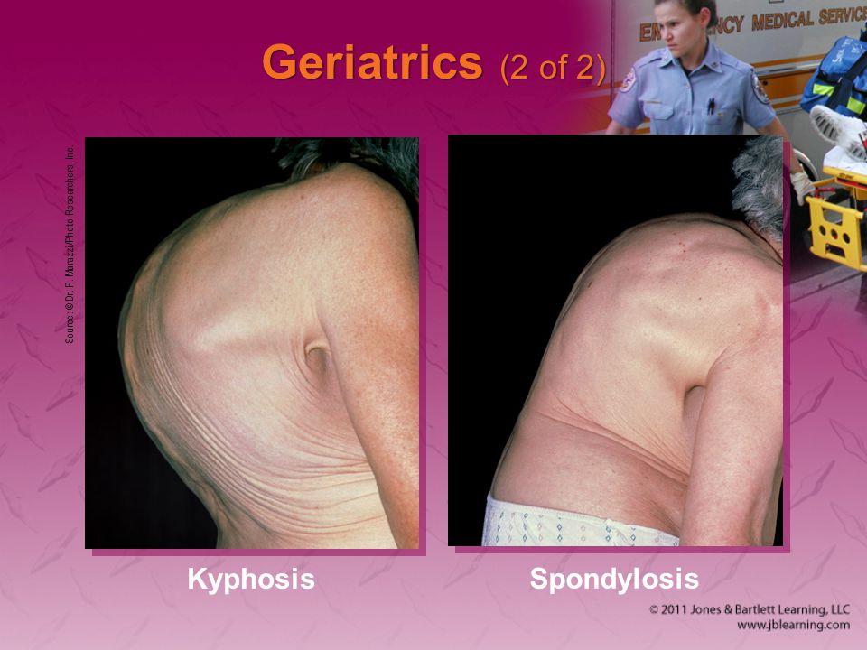 Geriatrics (2 of 2) Source: © Dr. P. Marazzi/Photo Researchers, Inc. Kyphosis Spondylosis