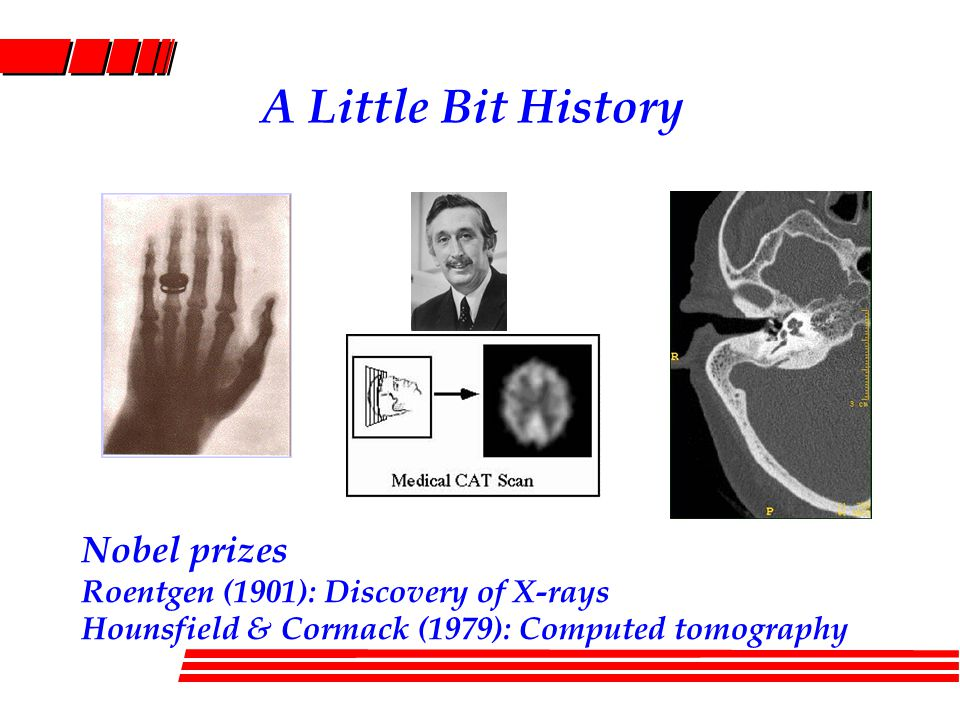 A Little Bit History Nobel prizes Roentgen (1901): Discovery of X-rays Hounsfield & Cormack (1979): Computed tomography