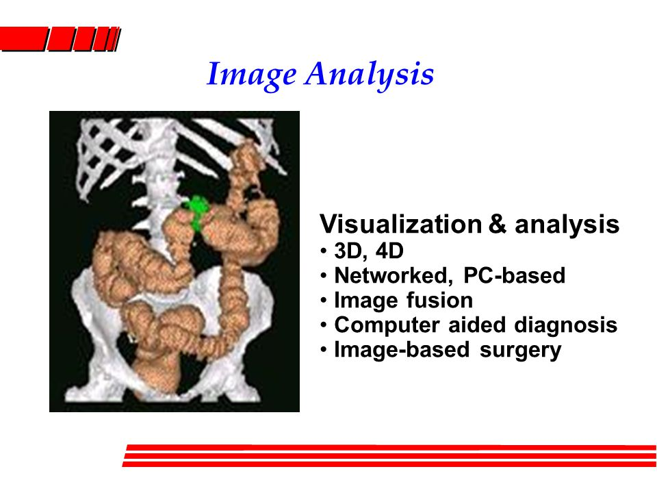 Image Analysis Visualization & analysis 3D, 4D Networked, PC-based Image fusion Computer aided diagnosis Image-based surgery