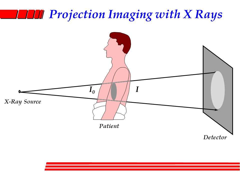 Projection Imaging with X Rays X-Ray Source Patient Detector I0I0 I