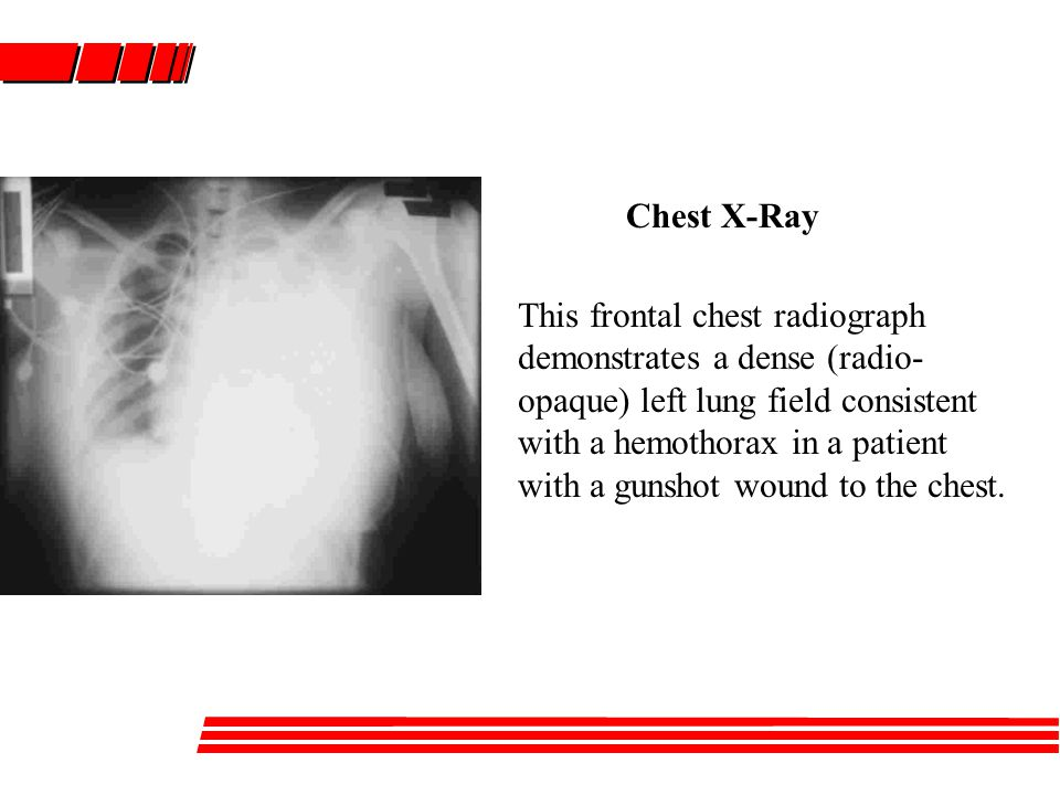 This frontal chest radiograph demonstrates a dense (radio- opaque) left lung field consistent with a hemothorax in a patient with a gunshot wound to the chest.