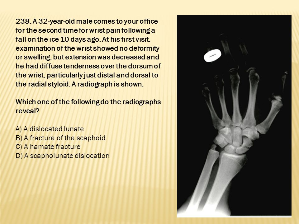 238. A 32-year-old male comes to your office for the second time for wrist pain following a fall on the ice 10 days ago. At his first visit, examinati