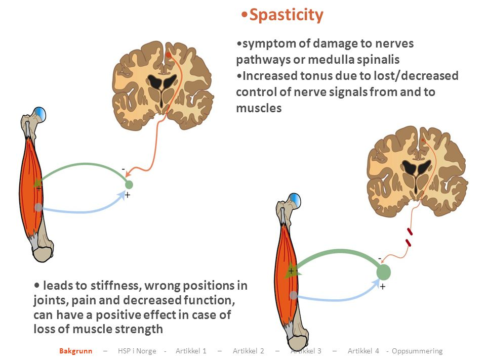 Spasticity leads to stiffness, wrong positions in joints, pain and decreased function, can have a positive effect in case of loss of muscle strength symptom of damage to nerves pathways or medulla spinalis Increased tonus due to lost/decreased control of nerve signals from and to muscles Bakgrunn – HSP i Norge - Artikkel 1 – Artikkel 2 – Artikkel 3 – Artikkel 4 - Oppsummering