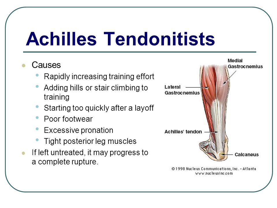 Achilles Tendonitists Causes Rapidly increasing training effort Adding hills or stair climbing to training Starting too quickly after a layoff Poor footwear Excessive pronation Tight posterior leg muscles If left untreated, it may progress to a complete rupture.