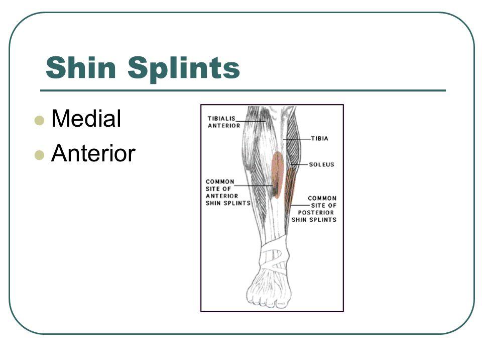 Shin Splints Medial Anterior