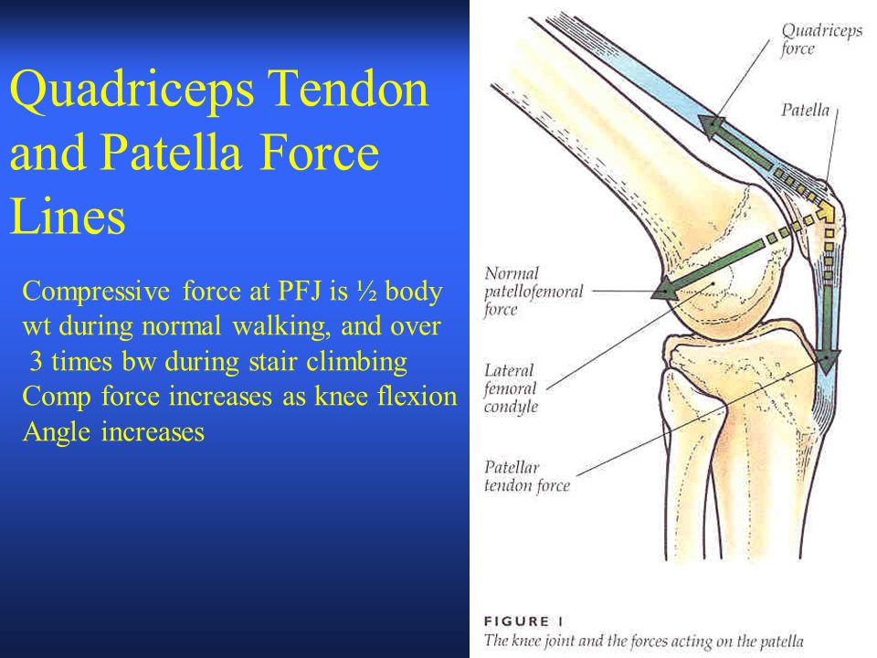Quadriceps Tendon and Patella Force Lines Compressive force at PFJ is ½ body wt during normal walking, and over 3 times bw during stair climbing Comp force increases as knee flexion Angle increases