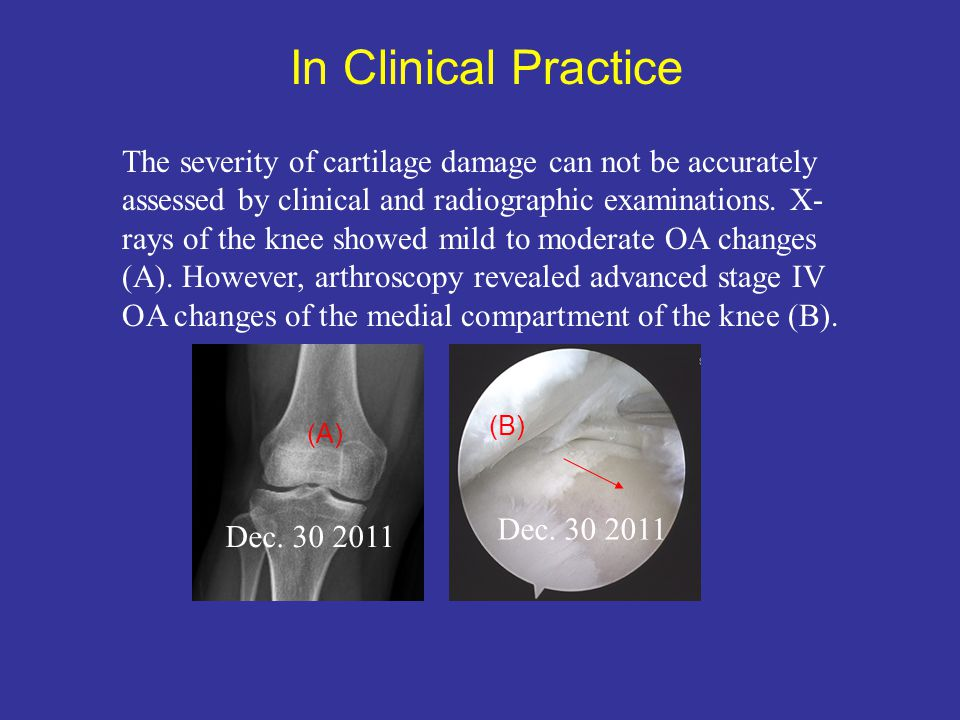 Dec. 30 2011 The severity of cartilage damage can not be accurately assessed by clinical and radiographic examinations. X- rays of the knee showed mil