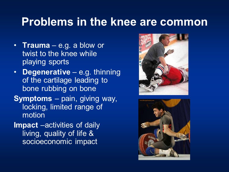 Problems in the knee are common Trauma – e.g.