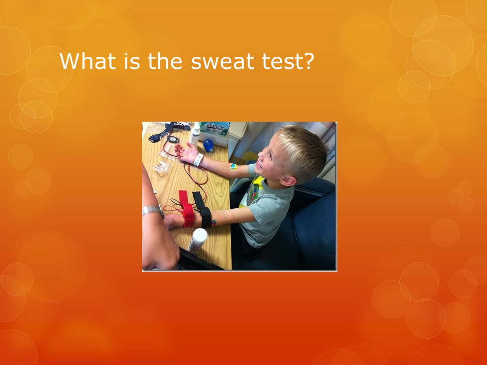 What is the sweat test?