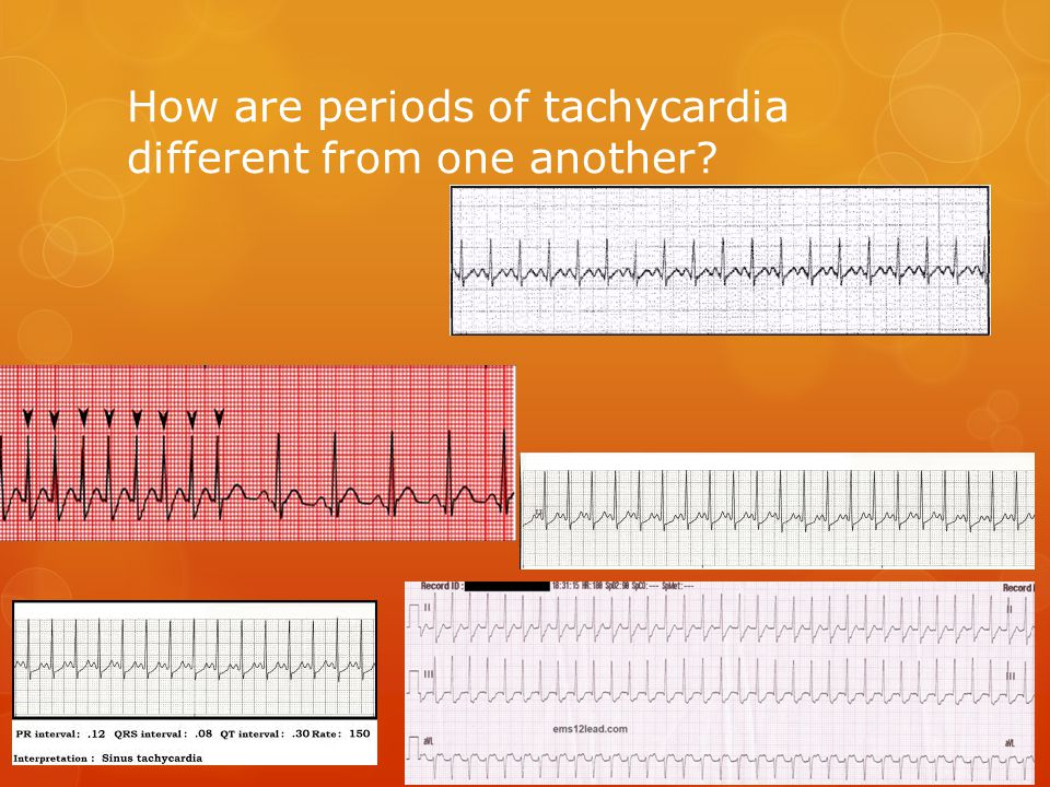 How are periods of tachycardia different from one another?