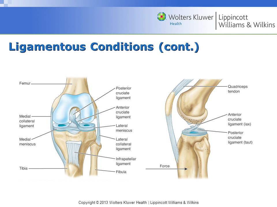 Copyright © 2013 Wolters Kluwer Health | Lippincott Williams & Wilkins Ligamentous Conditions (cont.)