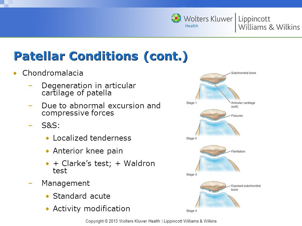 Copyright © 2013 Wolters Kluwer Health | Lippincott Williams & Wilkins Patellar Conditions (cont.) Chondromalacia –Degeneration in articular cartilage of patella –Due to abnormal excursion and compressive forces –S&S: Localized tenderness Anterior knee pain + Clarke's test; + Waldron test –Management Standard acute Activity modification