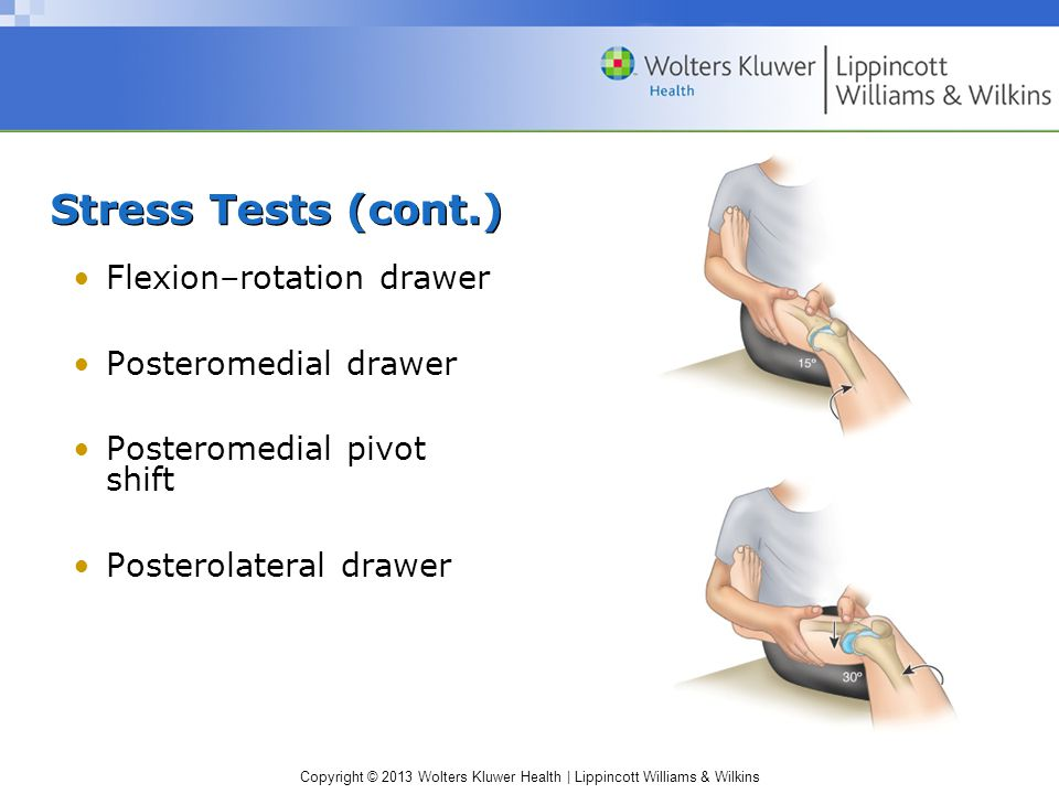 Copyright © 2013 Wolters Kluwer Health | Lippincott Williams & Wilkins Stress Tests (cont.) Flexion–rotation drawer Posteromedial drawer Posteromedial pivot shift Posterolateral drawer
