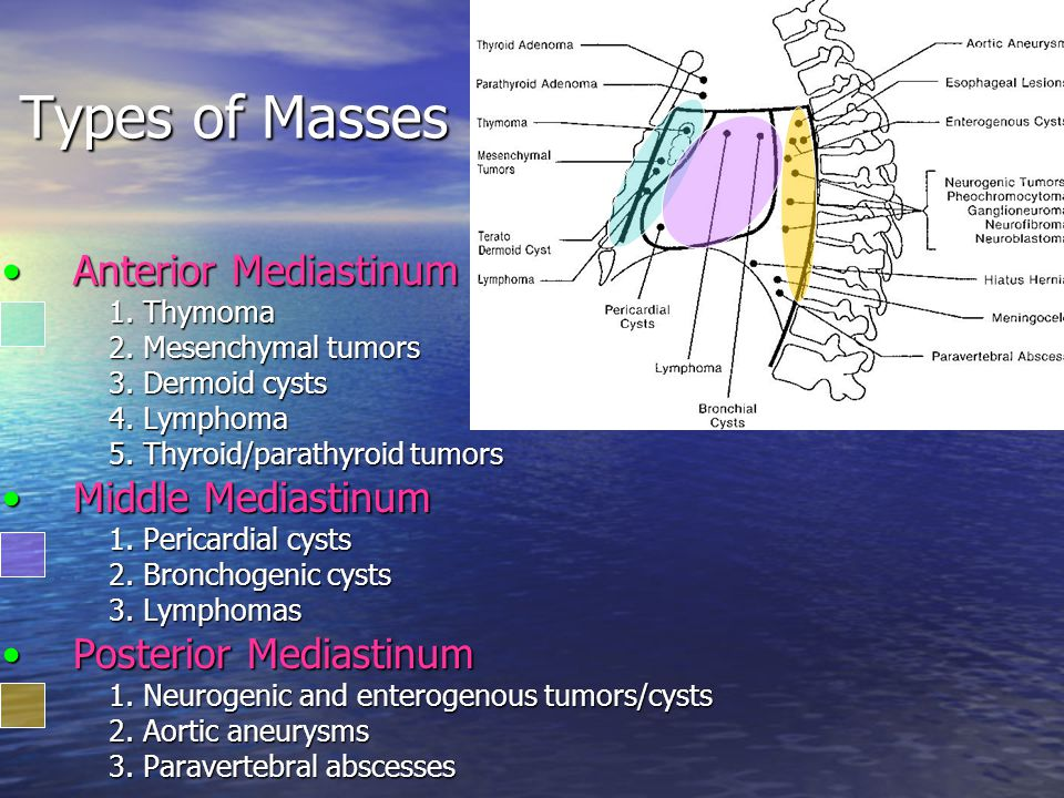 Types of Masses Anterior MediastinumAnterior Mediastinum 1. Thymoma 2. Mesenchymal tumors 3. Dermoid cysts 4. Lymphoma 5. Thyroid/parathyroid tumors M
