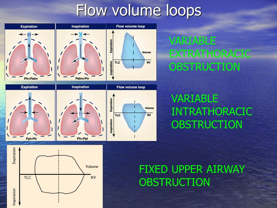 Flow volume loops VARIABLE EXTRATHORACIC OBSTRUCTION VARIABLE INTRATHORACIC OBSTRUCTION FIXED UPPER AIRWAY OBSTRUCTION