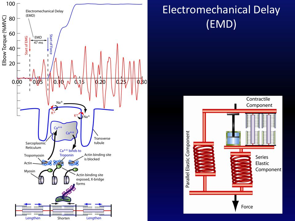 Electromechanical Delay (EMD)