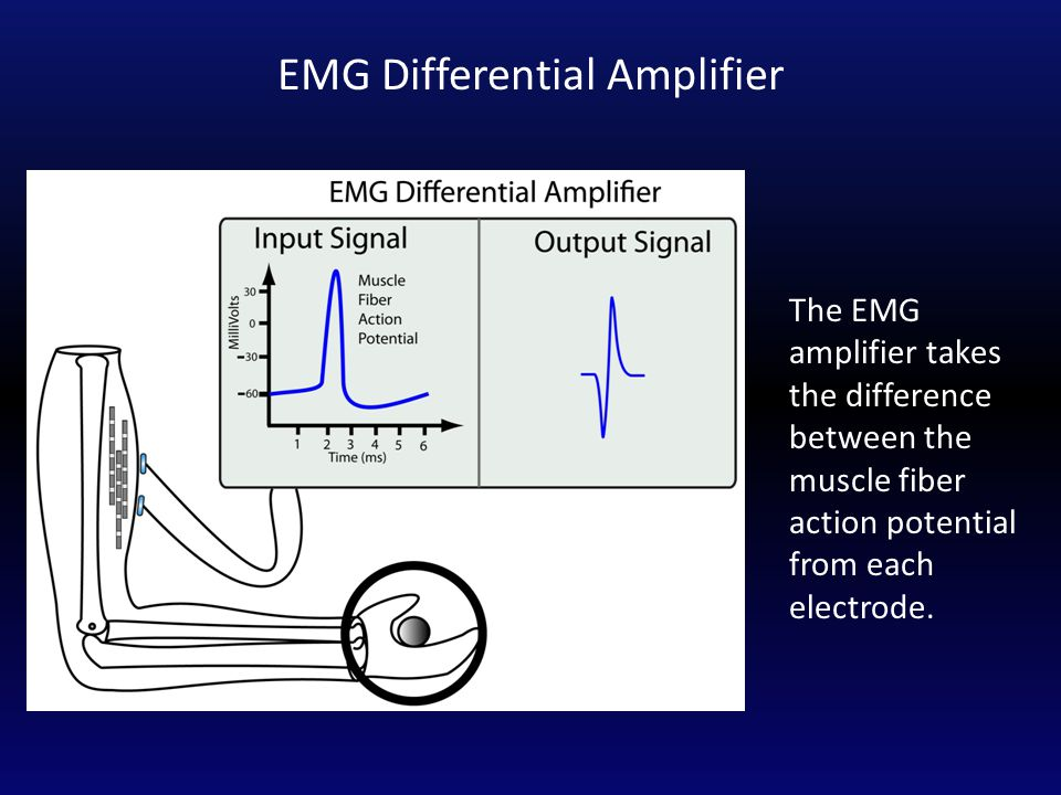 The EMG amplifier takes the difference between the muscle fiber action potential from each electrode.