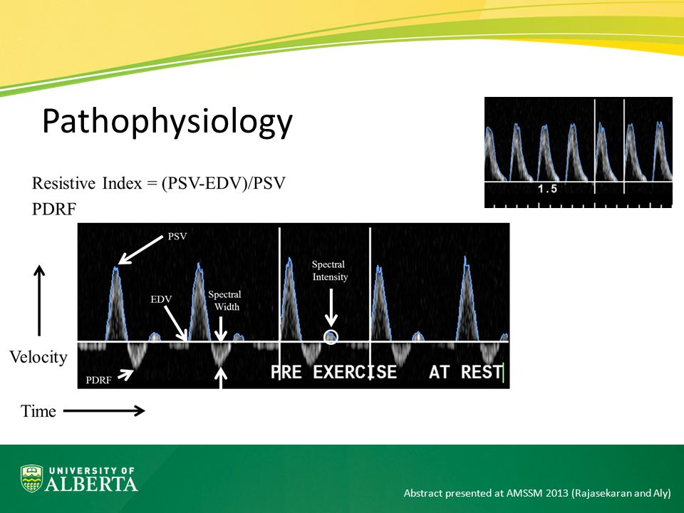 Pathophysiology Abstract presented at AMSSM 2013 (Rajasekaran and Aly)