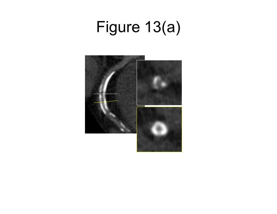 Figure 13(a)