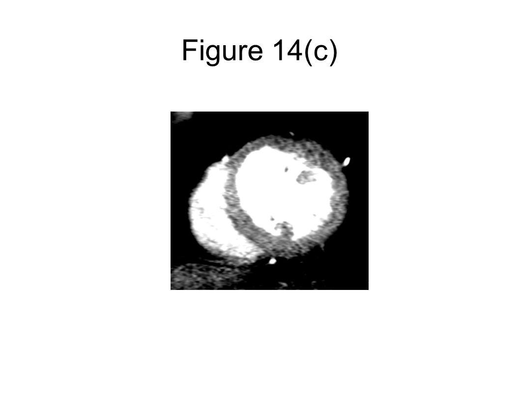 Figure 14(c)