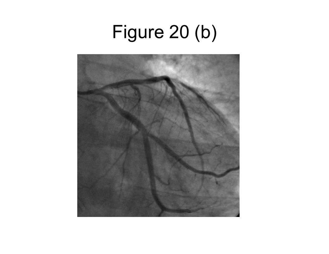Figure 20 (b)