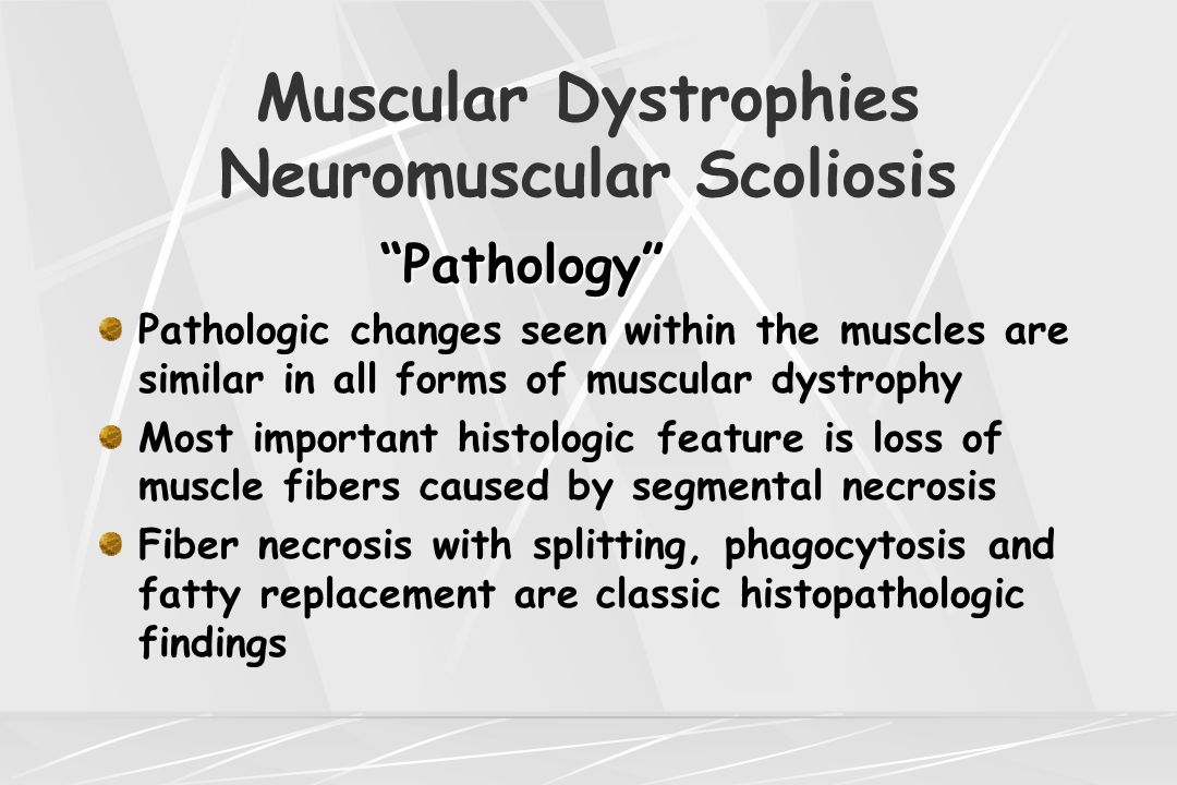 "Muscular Dystrophies Neuromuscular Scoliosis ""Pathology"" Pathologic changes seen within the muscles are similar in all forms of muscular dystrophy Mos"