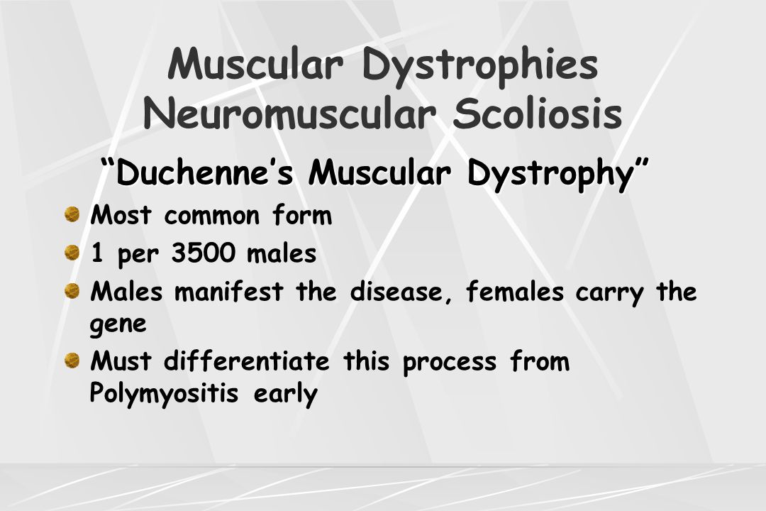 "Muscular Dystrophies Neuromuscular Scoliosis ""Duchenne's Muscular Dystrophy"" Most common form 1 per 3500 males Males manifest the disease, females car"